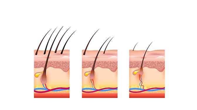 canine hair follicles